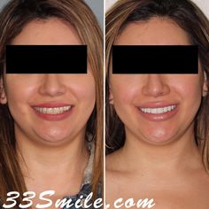 8 Prepless Veneers. We love this result! #drjamsmiles #33Smile . . All photos and video of patients are of our actual patients. All media is the of Cosmetic Dental Associates. Any use of media contained herein is prohibited without written consent. . . #satx #satxdentist #dentistry #goals #smile #teeth #instagoals #transformationtuesday #beforeandafter #whiteteeth #perfect #transformation #teethwhitening #veneers #Invisalign #porcelainveneers #sanantonio #orthodontics #drmoore… Insta Goals, Porcelain Veneers, Dental Cosmetics, Smile Teeth, Dental Procedures, Cosmetic Dentistry, Transformation Tuesday, Orthodontics, Beautiful Smile