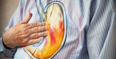 4 Natural Ways to Deal with Acid Reflux, Heartburn and GERD - Daily Health Post