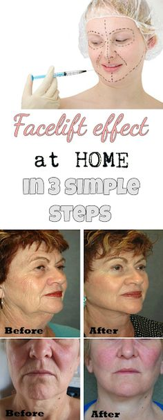 Facelift effect at home in 3 simple steps Diy Beauty Face, Beauty Care, Beauty Skin, Face Care, Body Care, Skin Care, Beauty Secrets, Beauty Hacks, Beauty Recipe