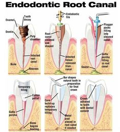#Endodontic #Root Canal