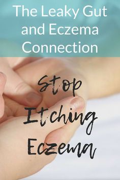 Are you struggling with eczema? The solution could be fixing your leaky gut. Find out how leaky gut and eczema are connected. #leakygut #eczema