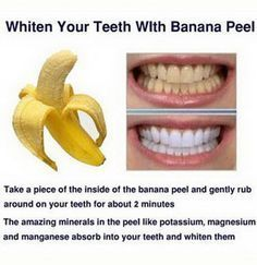 Teeth Nails: 15 Natural Ways to Whiten Your Teeth: Homemade Tee...