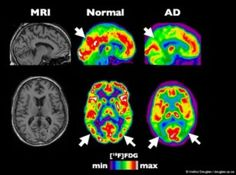 See also: Cannabis and Alzheimer's Disease Marijuana could prevent Alzheimer's, helpsmemory Marijuana for Alzheimers Active ingredient in marijuana may help preserve brain function A puff a day mi...