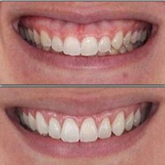 If you think your teeth are too short, periodontal plastic surgery can lengthen the visible portion of your teeth and correct a gummy smile.