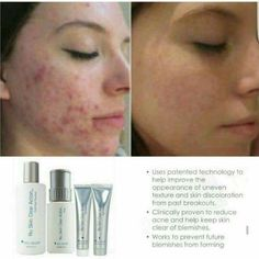 Galvanic Spa, Face Lines, Acne Treatment, Clear Skin, Beauty Secrets, How To Remove, Nu Skin, Skin Care, Action
