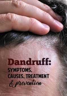 Causes, Treatment and Prevention What is dandruff? Causes of dandruff and how to treat it so it doesn't return.What is dandruff? Causes of dandruff and how to treat it so it doesn't return. How To Prevent Dandruff, What Causes Dandruff, How To Treat Dandruff, Home Remedies For Dandruff, Oils For Dandruff, Getting Rid Of Dandruff, Treating Dandruff, Natural Remedies, Home Remedies