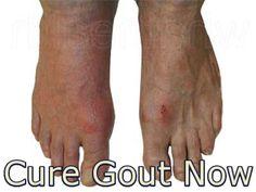 gota pie tratamiento el acido urico produce cansancio cristales de acido urico en parcial de orina