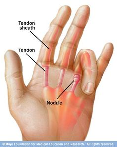 Trigger finger often experienced by the elderly or by people diagnosed with conditions like rheumatoid arthritis causes the fingers to pop or get stuck when you try to extend them. Diagnosis is o Rheumatoid Arthritis Causes, Knee Arthritis, Types Of Arthritis, Arthritis Exercises, Arthritis Remedies, Arthritis Hands, Arthritis Relief, Fibromyalgia, Trigger Finger Exercises