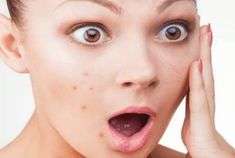Can Coconut Oil Give You Acne?