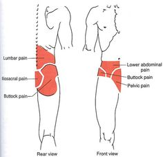 Lower Torso | The Trigger Point & Referred Pain Guide