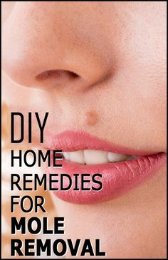 DIY Home Remedies For Moles Removal