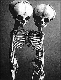 .Conjoined Siamese Fetal Skeletons, Made to order