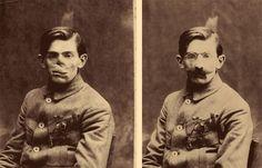 WWI veteran with prosthetic face http://queenieluvsquetzalcoatl.tumblr.com/....