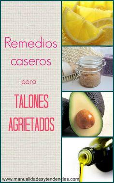 Remedios caseros para talones agrietados / Home remedies for cracked heels.