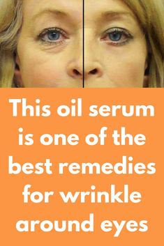 This oil serum is one of the best remedies for wrinkle around eyes Wrinkles under the eyes can damage the entire beauty of your face. Wrinkles around the eyes can be treated at home with simple home remedies by spending much less time than what you commit Under Eye Wrinkles, Face Wrinkles, Vitamin E, Argan Oil Skin Benefits, Home Remedies For Wrinkles, Wrinkle Remedies, Anti Aging Treatments, Best Wrinkle Treatment, Home Remedies