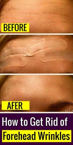 Best Home Remedies and Natural Tips to #Remove #Forehead #Lines Face Wrinkles, Prevent Wrinkles, Oily Face, Face Skin, Natural Beauty Tips, Health And Beauty Tips, Health Tips, How To Get Rid, Health