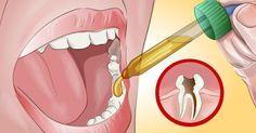 2 ingredienser från köket kan bota din tandvärk – med bara några få droppar