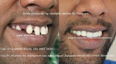 Smile Makeover by cosmetic dentist Dr Trivikram in Bangalore. Cosmetic Dentistry Cost, Smile Makeover, Smile Design, Dentist In, Good Smile, All Smiles, Karnataka, Latest Technology, Branches