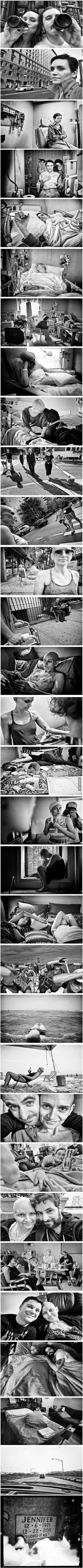 Photographer takes a picture every stage his girlfriend went through in her battle with cancer ♥