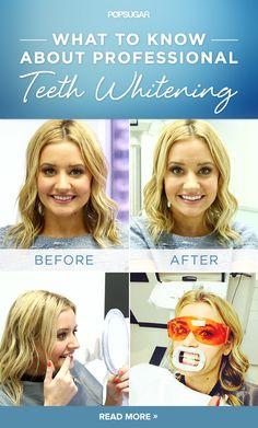 Natural Teeth Whitening Remedies Zoom Teeth Whitening: My Experience Best Teeth Whitening Kit, Teeth Whitening Remedies, Natural Teeth Whitening, Dentist Teeth Whitening, Teeth Whitening Procedure, Teeth Bleaching, Dental Health, Oral Health, Dental Care