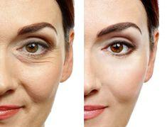 Loción Facial, Eye Gel Pads, Under Eye Wrinkles, Botox Fillers, Wrinkled Skin, Les Rides, Aging Cream, Peeling, Best Anti Aging