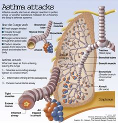 """There's good news about asthma in the report card """"Asthma in Australia published last week by the Australian Institute of Health and Welfare (AIHW). But there are also some sobering facts about heath-care… Asthma Remedies, Asthma Symptoms, Asthma Relief, Health Remedies, Respiratory Therapy, Respiratory System, Heath Care, Nursing Notes, Traditional Chinese Medicine"""