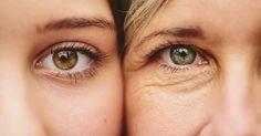 Veja quais são as causas e saiba como evitar o envelhecimento precoce