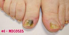 Los 6 problemas o enfermedades más comunes en las uñas | Decoración de Uñas - Manicura y Nail Art