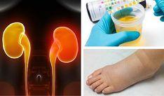 8 sintomas de insuficiência renal que muitos ignoram | melhorcomsaude.com