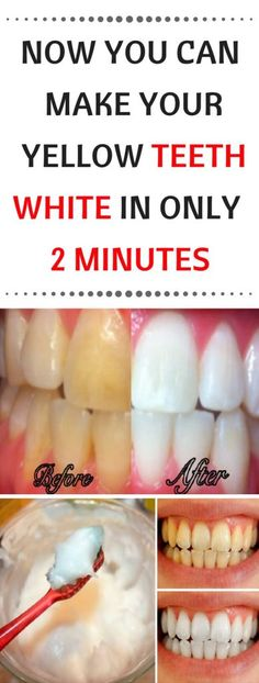 Healthy and white teeth are something that everybody desires. But to achieve thi… Healthy and white teeth are something that Teeth Whitening Remedies, Natural Teeth Whitening, Whitening Kit, White Teeth Remedies, Remedies For Tooth Ache, White Smile, Receding Gums, Oral Health, Teeth Health