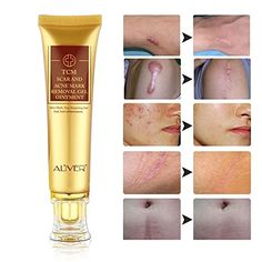TCM Scar Cream Acne Scar Removal Cream Face Skin Repair Cream Acne Spots Treatment Blackhead Whitening Cream Scar Gel for Stretch Marks Relief and Burns Repair Look into the image by going to the web link. (This is an affiliate link). Acne Mark Removal, Acne Scar Removal Treatment, Scar Removal Cream, Acne Spot Treatment, Skin Treatments, Stretch Mark Removal, Acne Scar Cream, Best Scar Cream, Best Acne Products