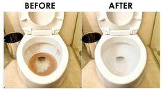 Splash - Toilet Cleaner Diy Home Cleaning, Car Cleaning Hacks, Bathroom Cleaning Hacks, Household Cleaning Tips, Toilet Cleaning, Cleaning Recipes, House Cleaning Tips, Diy Cleaning Products, Cleaning Toilets