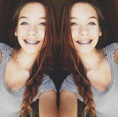 Double braces more