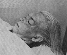 Marilyn Monroe Autopsy Photo....Evidence is missing, including the original autopsy, her supposed suicide note (which mentioned suicide not at all), and original police report. Furthermore, the first officer at the death scene has publicly disputed the suicide finding. In 1985, a 20/20 episode was to air where Robert Slatzer postulates that Monroe was killed by Bobby Kennedy, or was in his presence when she died. The show is cancelled.