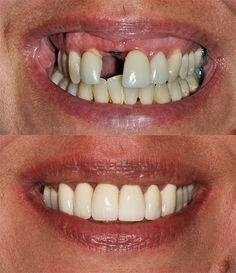 Before and After Dental Implants. http://bcperio.ca/