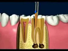 Endodoncia Madrid tratamiento pulpar, que es una endodoncia , que pasos se sigen en una endodoncia-