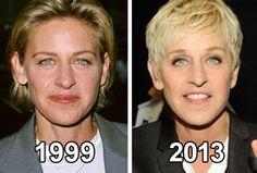 Anti-wrinkle secret