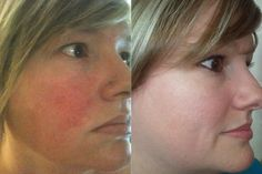 Soothe works! Don't be red faced for Valentine's Day!