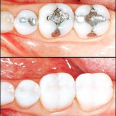 Contact us about #CEREC and how Concerned Dental Care can help you get back your perfect #smile. #perfectteeth #concerneddentalcare #dentalhygiene #oralhealth #beforeandafter