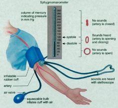 blood pressure sounds