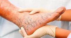 Watch This Video Natural Remedies Varicose Veins Ideas. White Toenail Fungus, Toenail Fungus Remedies, Toenail Fungus Treatment, Nail Treatment, Fungus Toenails, Get Rid Of Spider Veins, Get Rid Of Spiders, Varicose Vein Remedy, Cellulite
