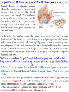 Get to know about treatment, medical procedures and surgeries from top class hospitals in India. Median Nerve, Joint Replacement, Carpal Tunnel Syndrome, Best Doctors, Doctor In, Fibromyalgia, Health Remedies, Arthritis, Pain Relief