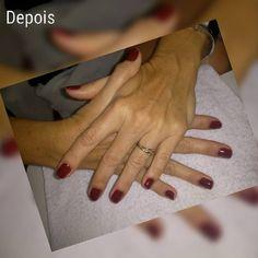 Nossa linda cliente  com o antes e depois das suas unhas naturais. Obrigada pela preferência  . CONTATO: (84) 9.9658-0603 Rua José Mauro de Vasconcelos 1870 - Capim Macio - Natal/RN. . #salao #natal #escova #cabelo #salaodebeleza #natalrn #mechas #tinturadecabelo #cortesdecabelo #maquiagem #penteado #manicure #pedicure #rosefioafio #unhas #nails #postiça