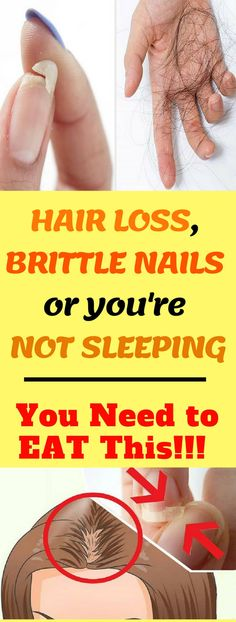 EAT THIS IF YOU HAVE HAIR LOSS, BRITTLE NAILS OR YOU'RE NOT SLEEPING!!! #hairloss #brittle #nails #eat #sleeping #healthy