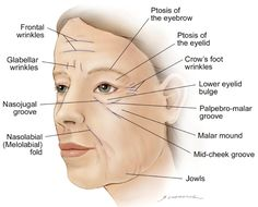 Facial Aging 101  