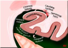 The Radiology Assistant : Brain Anatomy Brain Anatomy, Medical Anatomy, Human Anatomy, Mri Brain, Brain Stem, Nervous System Anatomy, Horn, Radiology Imaging, Cerebral Cortex