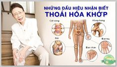 Bệnh thoái hóa đa khớp là tình trạng lão hóa ở các mô khớp khiến các sụn đệm ở các đầu xương trở nên khô ráp hoặc hư tổn gây đau cho người bệnh.