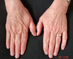Even does amazing wonders for your hands. Thats truly what AgeLoc does. this one is perfect Anyone can go to www.nuskin.com and use this code and get a discounted price for anything~ sponsor ID: UK3304160
