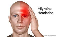 About Migraine Headache Triggers