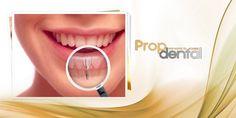 Estética en implantes dentales #dental